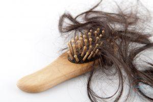 علاقة تساقط الشعر بالحجاب! وكيف تحافظين على شعرك
