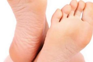 ما هى الطريقة الصحيحة لعلاج تشقق القدمين